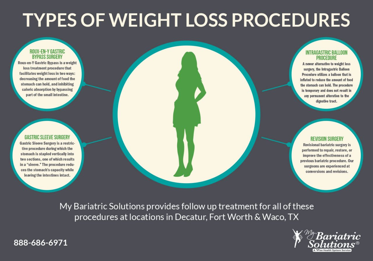 Types of Weight Loss Procedures [Infographic]